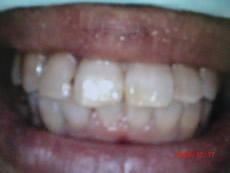 高村歯科医院矯正術後写真