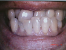 高村歯科矯正治療前写真
