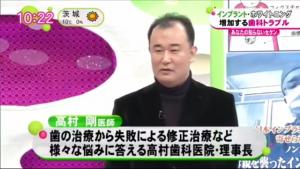 インプラント高村剛TV出演